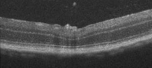 OCT B scan image